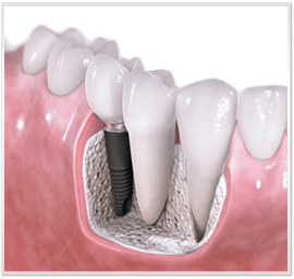 My Teeth Today: Dental Implants