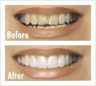 Dental Veneers for Smile Makeovers
