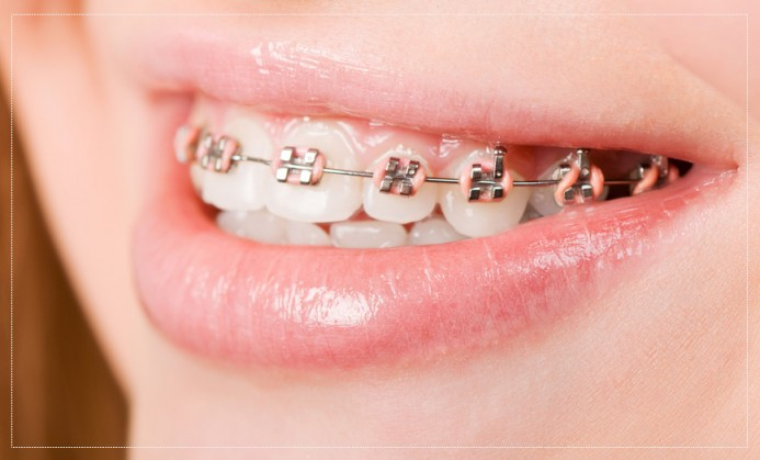 Straighten Up? Dental Braces for Children