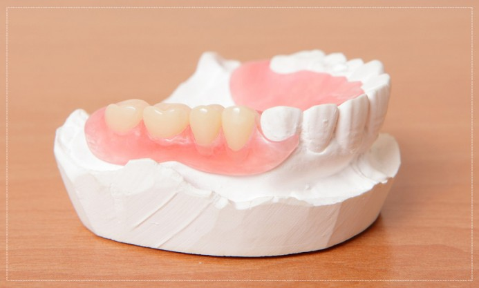 Weighing Your Options: Temporary Dentures vs. Permanent Dentures