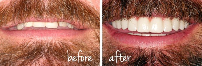 Gordon Brunner Before and After Dental Implants