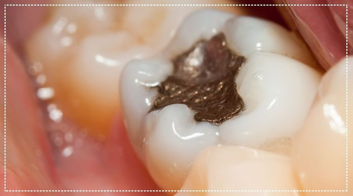 Are Metal Amalgam Fillings Safe?