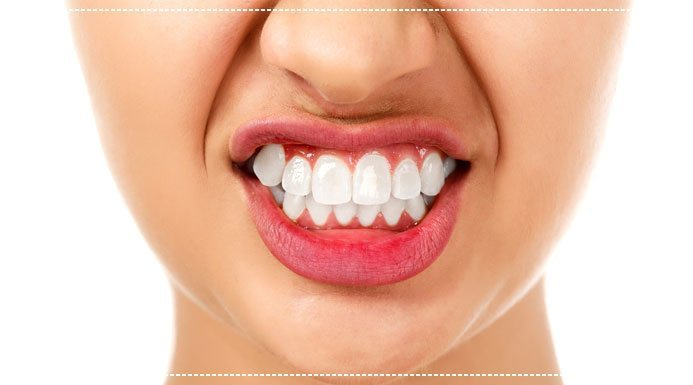 Could Your Gum Recession Be Caused by Teeth Grinding?