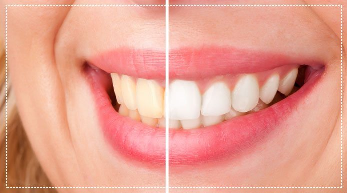 Does Activated Charcoal Tooth Powder Work?