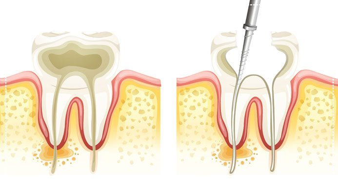 What Is a Root Canal, Exactly?
