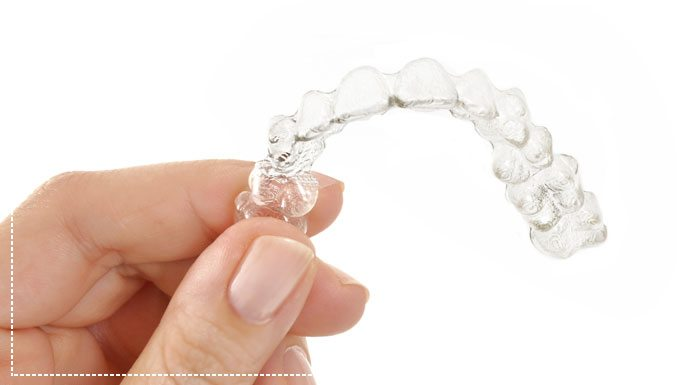 Invisalign: The Best Option for Adults Who Want Straighter Teeth