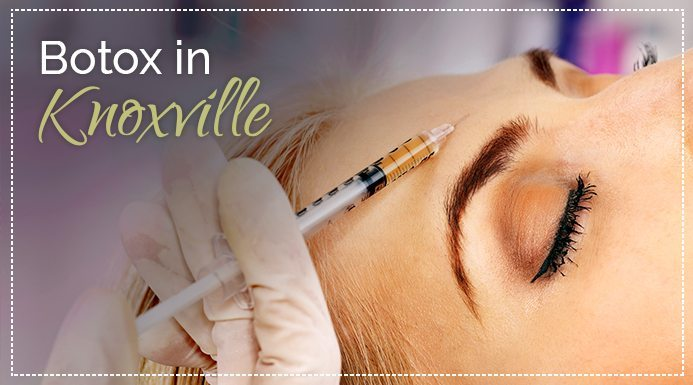 What Is Botox and Where Can I Get It in Knoxville?