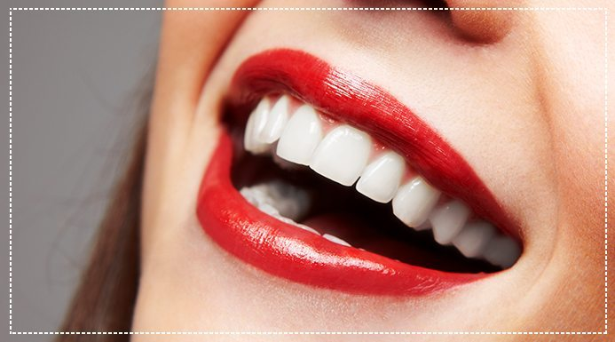 Veneers vs. Implants: Which is Best For Me?
