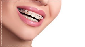 how-to-know-if-you-need-braces