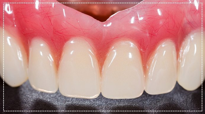 10 Times Permanent Dentures Are The Better Choice